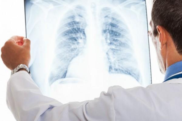 Akcja bezpłatnych badań płuc w Częstochowie